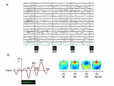 Potentiel évoqué par une syllabe chez un adulte. L'activité électrique est enregistrée à partir de capteur posés sur la tête pendant que l'on fait écouter des syllabes au volontaire.