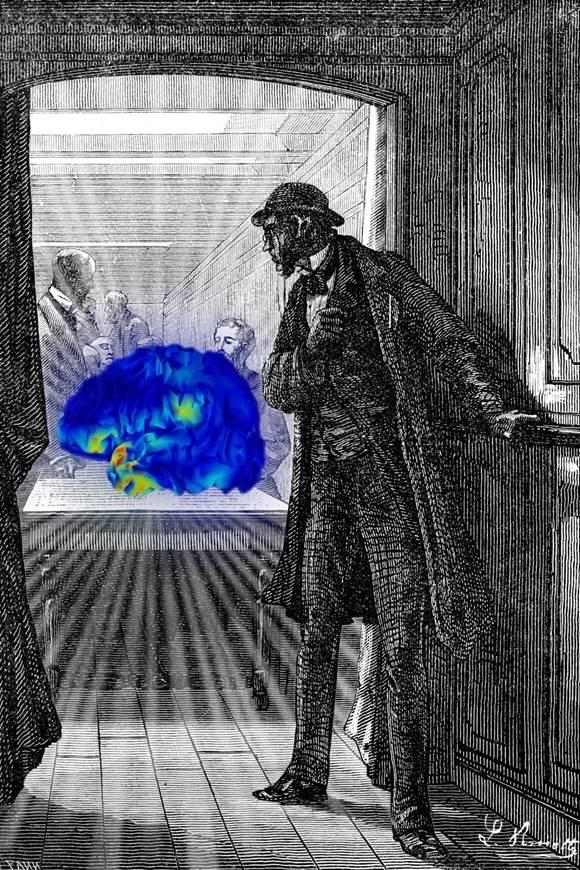 Les méthodes d'imagerie cérébrale
