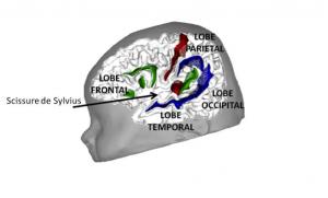 Vue de l'hémisphère gauche d'un bébé. Le sillon central (en rouge) sépare le lobe frontal et le lobe pariétal. La scissure de Sylvius sépare les lobes frontaux et pariétaux du lobe temporal et s'étend de l'avant du lobe temporal jusqu'à l'extrémité supérieur du planum temporale (en vert). Le gyrus de Heschl (en rouge) se trouve devant le planum temporale et contient l'aire auditive primaire. Le sillon temporal supérieur est en bleu. Dans le lobe frontal, les sillons en vert délimitent l'aire de Broca.