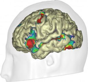 Régions du cerveau dont l'activité augmente avec le score de lecture, en réponse à des phrases écrites.