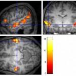 Régions du cerveau activées