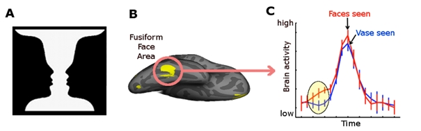 Figure 3 : L'activité en réponse à l'image ambigüe du visage-vase dans l'aire des visages du gyrus fusiforme («fusiform face area»), spécialisée dans le traitement du visage.