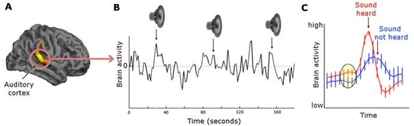Figure 4: Activité dans le cortex auditif en en réponse à un son à la limite de la perception.